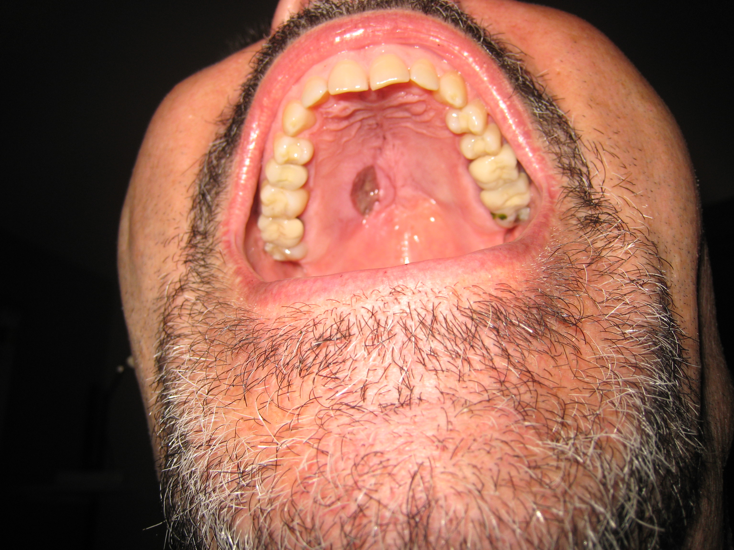 Bumps On Roof Of Mouth After Eating 110